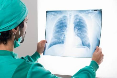 Балхашские врачи вылечили пациента с 90 % поражением легких