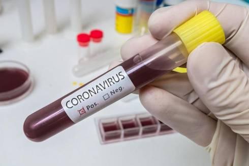 Число больных коронавирусом в РК выросло до 81: зарегистрирован еще один случай в Алматы