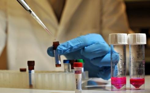 2 декабря студенты КарГУ смогут пройти экспресс-тестирование на ВИЧ