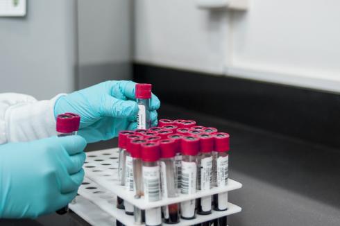 72 случая коронавируса в Казахстане: подробности о заболевших
