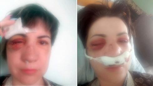 Жительница Сарани лишилась глаза и стала инвалидом после нападения бывшего мужа