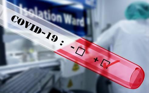 В Карагандинской области зарегистрированы 67 случаев заражения коронавирусной инфекцией