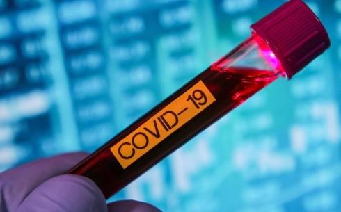COVID-19 с клиническими симптомами подтвердился еще у 49 жителей Карагандинской области