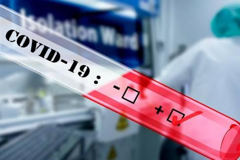 Восемь новых случаев коронавируса выявлены в Казахстане